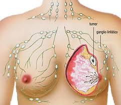 Tanaman Obat Penyakit Kanker Payudara